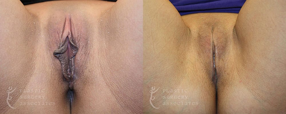 Patient 1 Labiaplasty Before and After