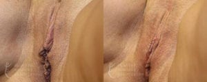 Patient 6b Labiaplasty Before and After