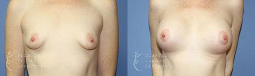Patient 6 Mommy Makeover Before and After Front Breast View