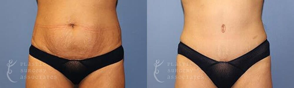 Patient 4a Tummy Tuck Before and After